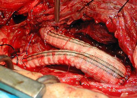 La trombosis de la carótida interior los indicios